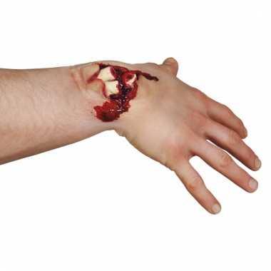 Latex fopwond met gebroken botten
