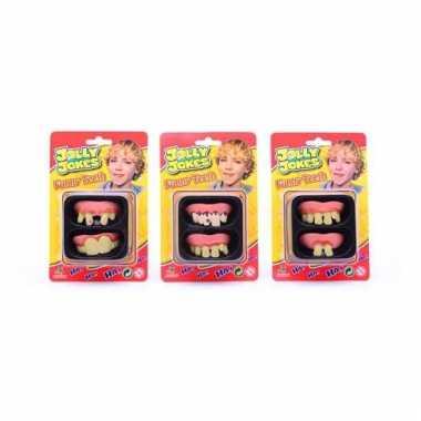 Nep tanden voor kinderen 2 stuks