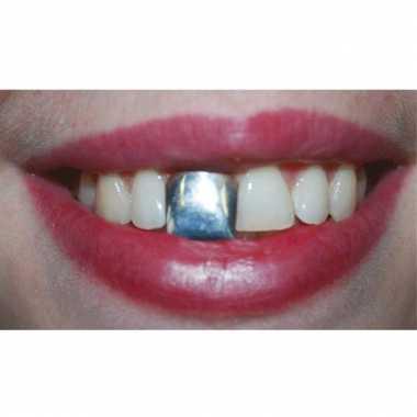 Nep zilveren tand